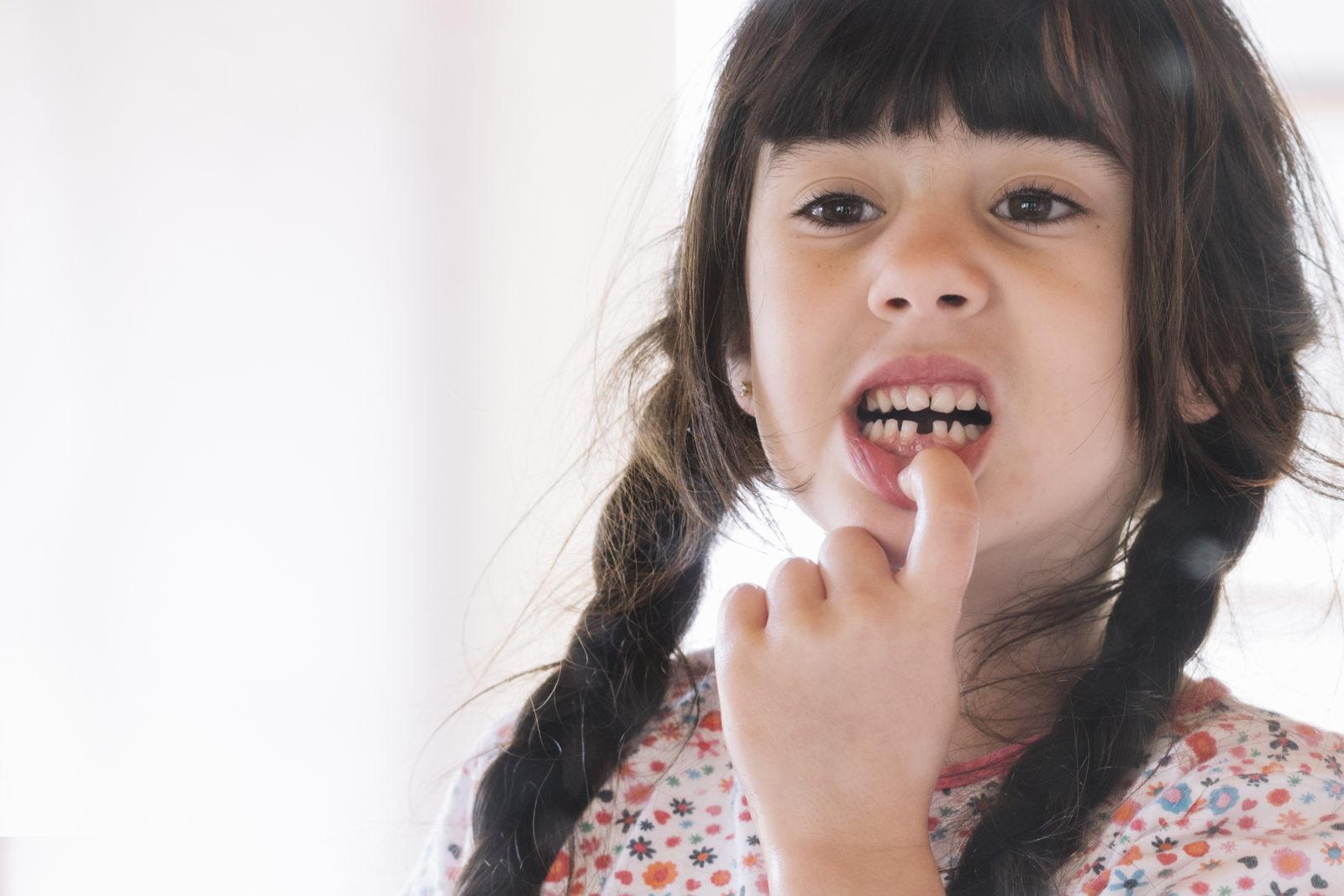 Lo que debes saber sobre la caída de los dientes de leche