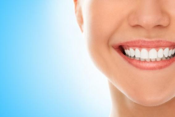 Todo sobre el blanqueamiento dental