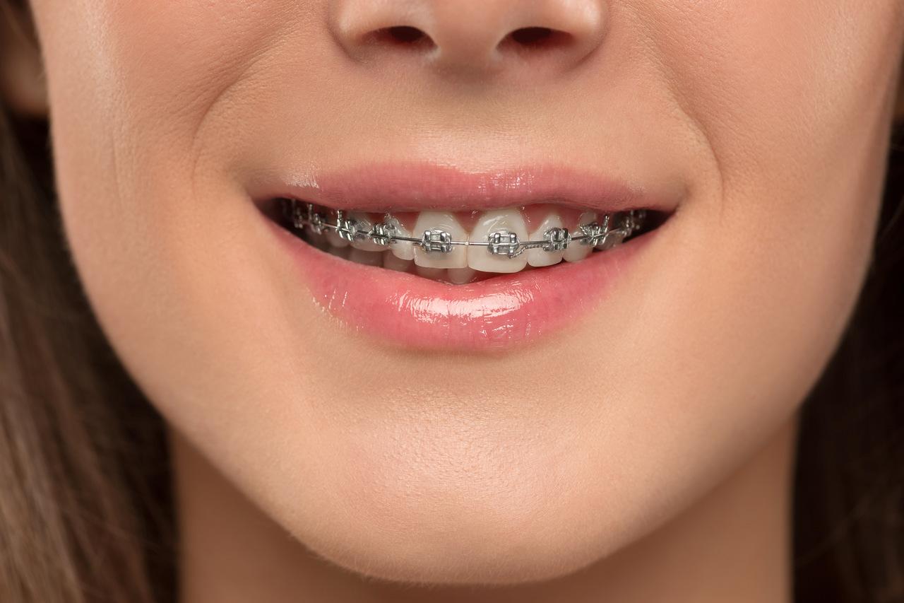 Cuando y por qué necesito ortodoncia